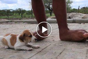 Jovem Com Pés Gigantes Sonha Um Dia Poder Calçar Sapatos De Salto Alto 10