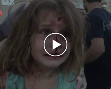 Menina Síria Ferida Procura Desesperadamente Pelo Seu Pai Após Bombardeamento 4