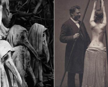 A Medicina Do Passado Em 15 Fotos Arrepiantes e Históricas Que Todos Devem Ver 3