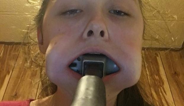 Adolescente Fica Com Martelo Preso Dentro Da Boca e Pede Ajuda No Twitter Para o Retirar 1
