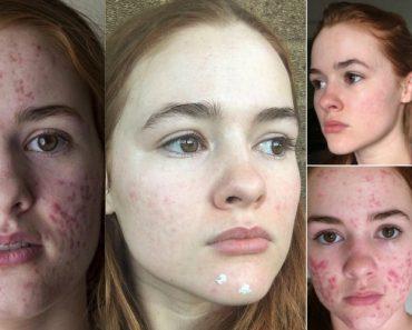 Jovem De 21 Anos Partilha Tratamento De Acne e Torna-se Viral No Instagram 3