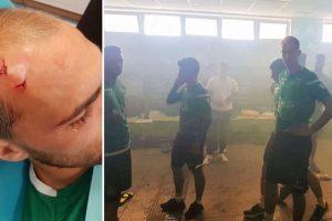 Academia Do Sporting Invadida Por Adeptos De Cara Tapada, Jogadores e Equipa Técnica Agredidos 9