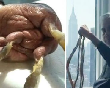 Após 66 Anos a Deixá-Las Crescer, Homem Decide Cortar As Maiores Unhas Do Mundo 2