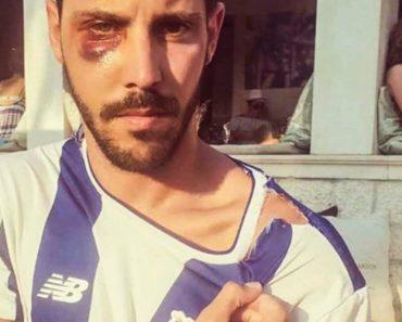 Vídeo Mostra Adeptos Do FC Porto a Serem Agredidos Na Croácia 5