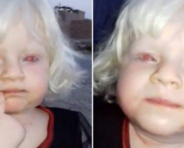 Filmagem Captada No Iraque Mostra Menina Albina De Olhos Vermelhos 2