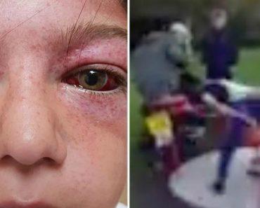 Criança De 11 Anos Fica Em Estado Critico Por Causa De Arriscada Brincadeira Em Parque Infantil 7