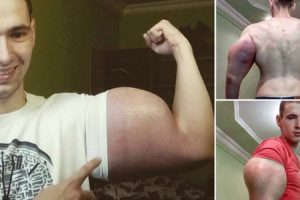 Homem Realiza Sonho De Ter Braços Iguais Aos Do Popeye Após Injetar Perigoso Óleo 8