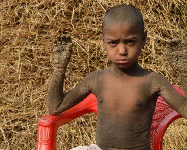 Menino De 8 anos Com Doença Rara Tem a Pele a Transformar-se Em Pedra 5