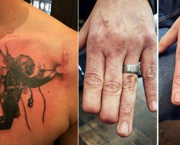 Tatuagens Que Transformaram Manchas e Cicatrizes Em Obras De Arte 9