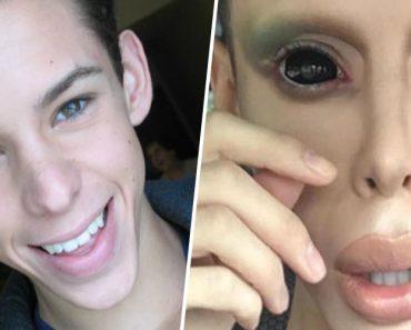Jovem Já Gastou Mais De 50.000 Dolares Para Ficar Parecido Com Um Alien, e Sem Sexo 3