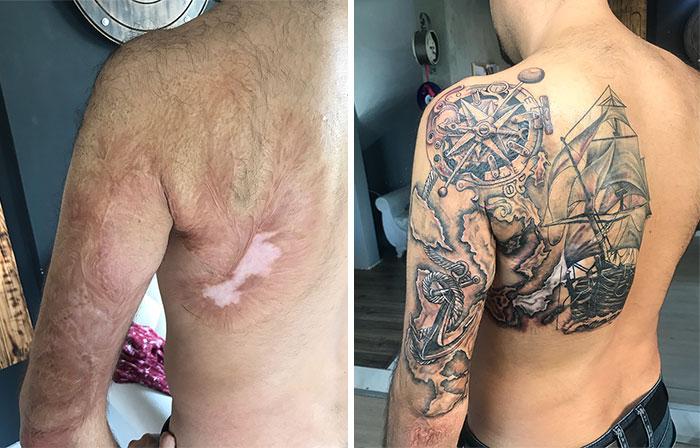 Tatuagens Que Transformaram Manchas e Cicatrizes Em Obras De Arte 1