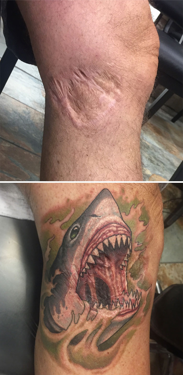 Tatuagens Que Transformaram Manchas e Cicatrizes Em Obras De Arte 13