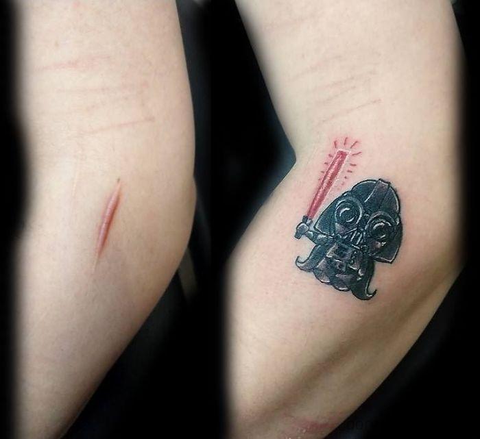 Tatuagens Que Transformaram Manchas e Cicatrizes Em Obras De Arte 20