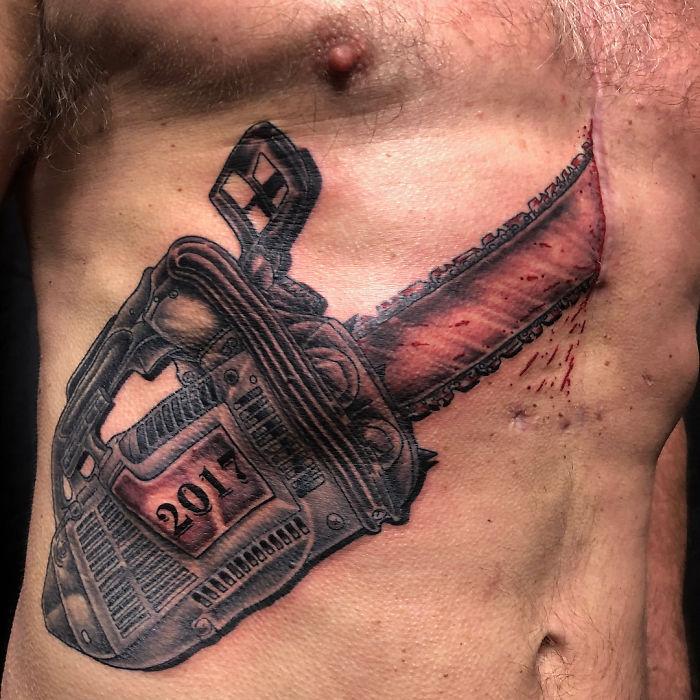 Tatuagens Que Transformaram Manchas e Cicatrizes Em Obras De Arte 3