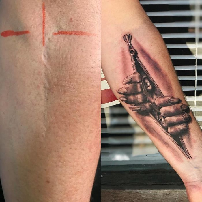 Tatuagens Que Transformaram Manchas e Cicatrizes Em Obras De Arte 4