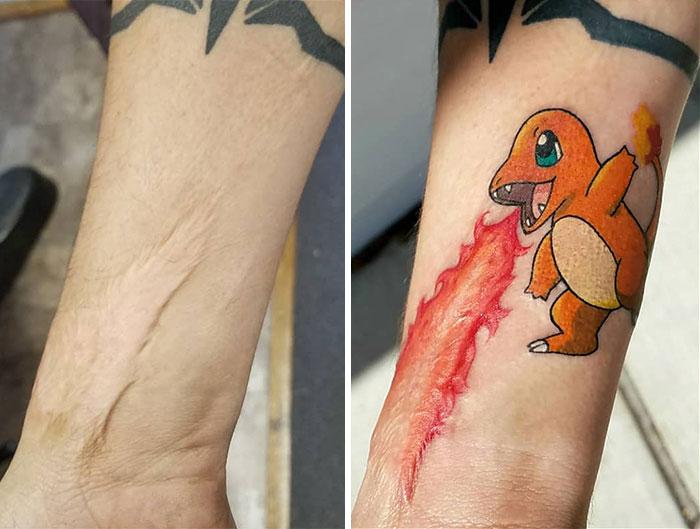Tatuagens Que Transformaram Manchas e Cicatrizes Em Obras De Arte 8